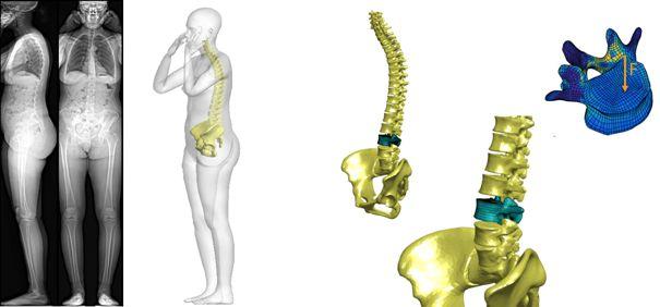 Fabrication d'implants